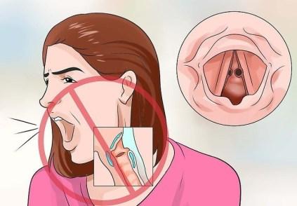 Nodule-des-cordes-vocales-3